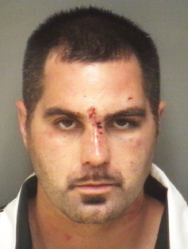 Man Wounded In Northern Albemarle Shooting – Suspect Arrested